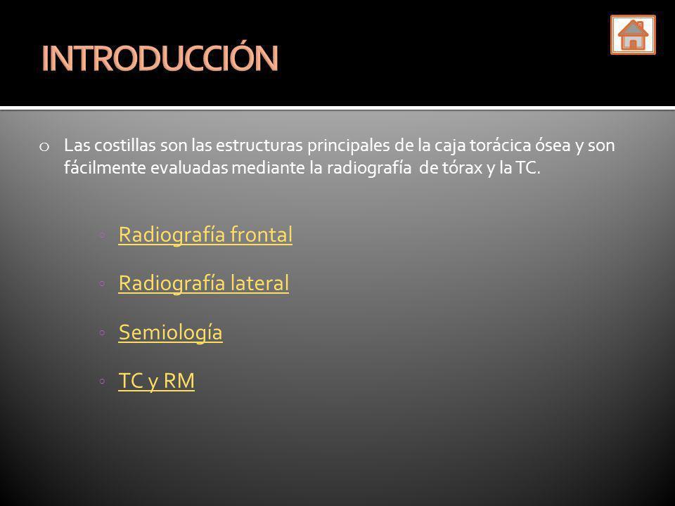 La TC muestra un empiema pleural crónico tuberculoso asociado a una masa torácica.