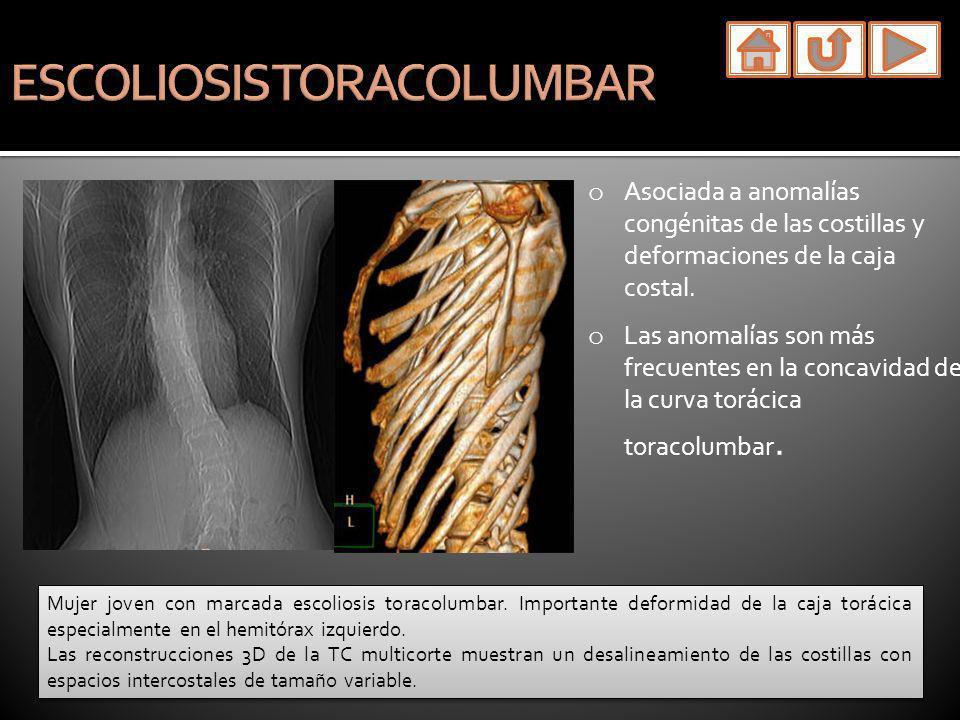 o Asociada a anomalías congénitas de las costillas y deformaciones de la caja costal. o Las anomalías son más frecuentes en la concavidad de la curva