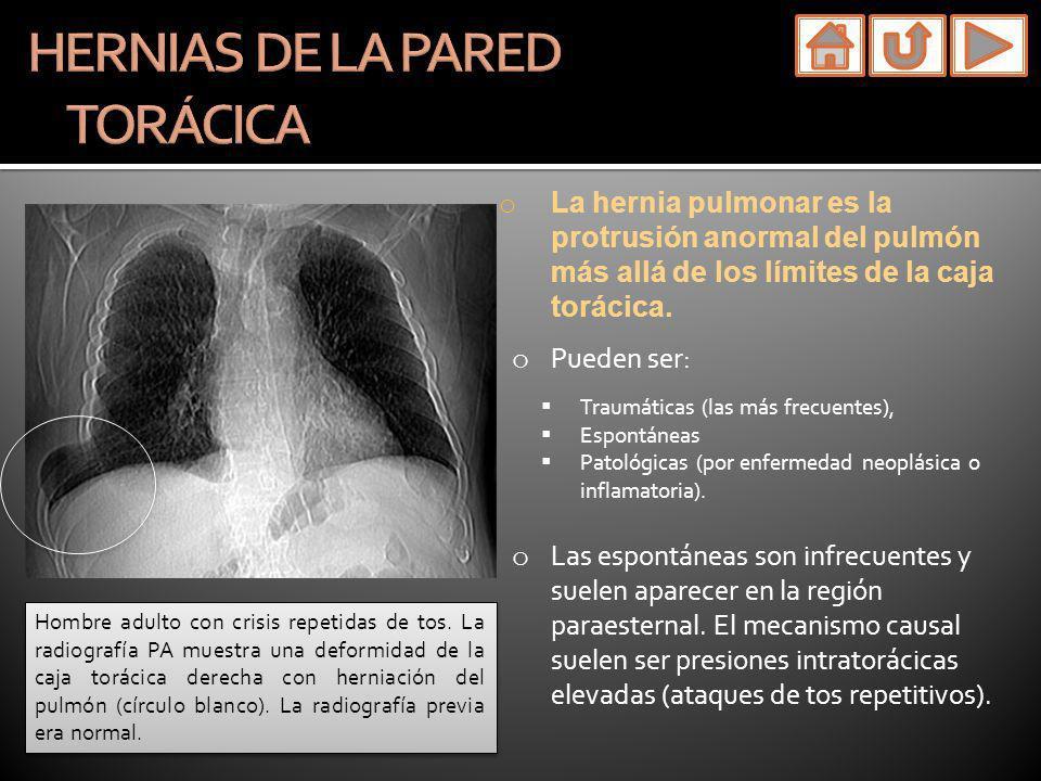 o La hernia pulmonar es la protrusión anormal del pulmón más allá de los límites de la caja torácica. o Pueden ser: Traumáticas (las más frecuentes),