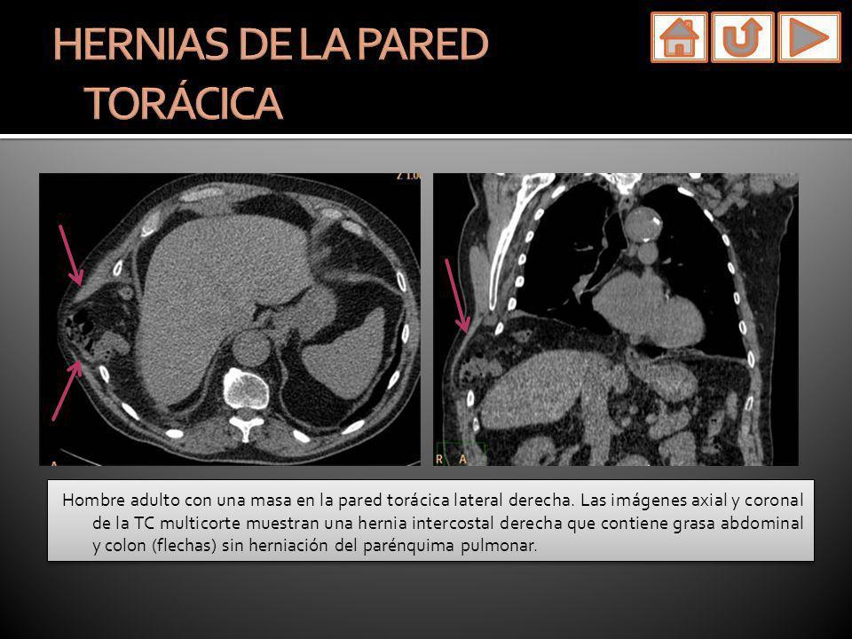 Hombre adulto con una masa en la pared torácica lateral derecha. Las imágenes axial y coronal de la TC multicorte muestran una hernia intercostal dere