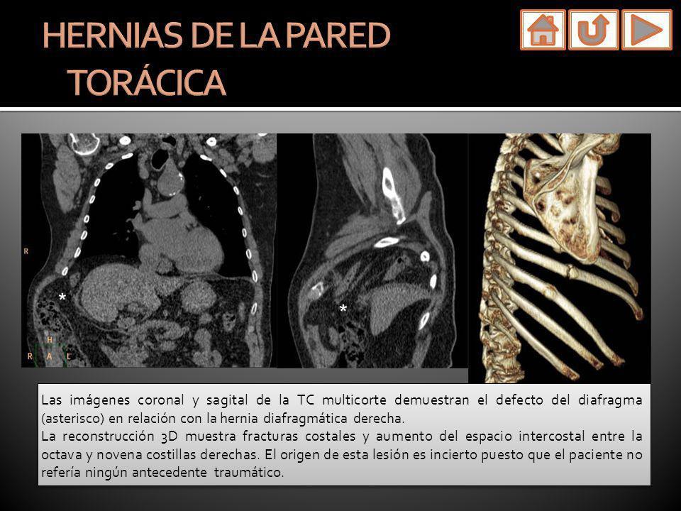 Las imágenes coronal y sagital de la TC multicorte demuestran el defecto del diafragma (asterisco) en relación con la hernia diafragmática derecha. La
