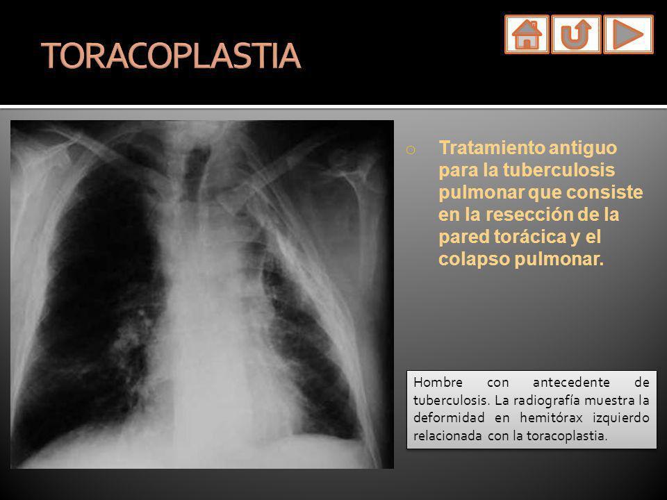 o Tratamiento antiguo para la tuberculosis pulmonar que consiste en la resección de la pared torácica y el colapso pulmonar. Hombre con antecedente de