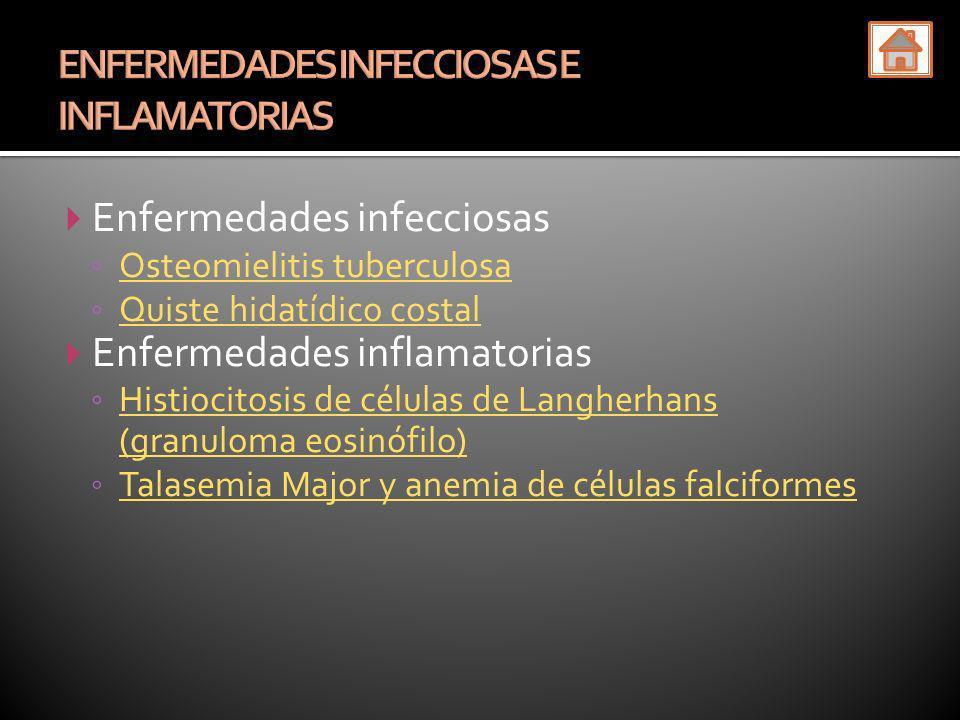 Enfermedades infecciosas Osteomielitis tuberculosa Quiste hidatídico costal Enfermedades inflamatorias Histiocitosis de células de Langherhans (granul