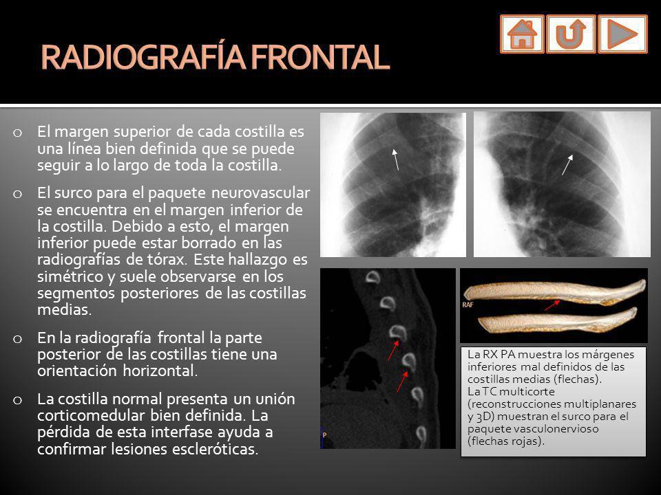 o La radiografía frontal de tórax muestra opacidades alrededor de las costillas que pueden simular patología pleural o extra pleural.