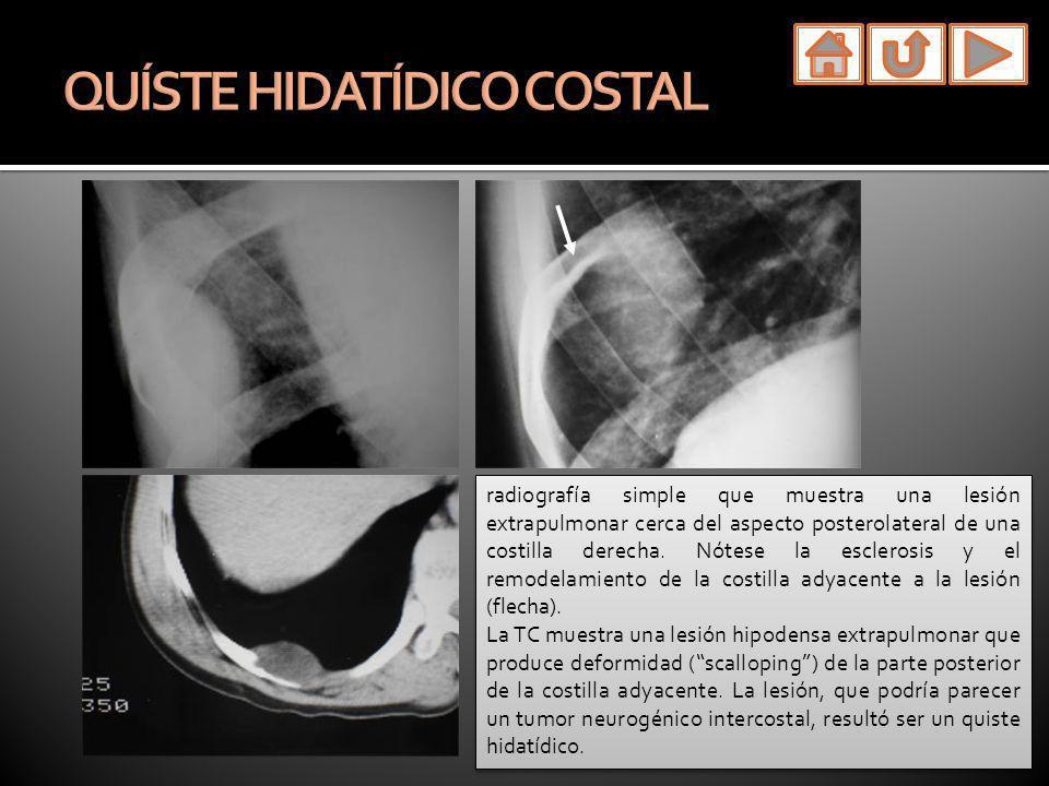radiografía simple que muestra una lesión extrapulmonar cerca del aspecto posterolateral de una costilla derecha. Nótese la esclerosis y el remodelami