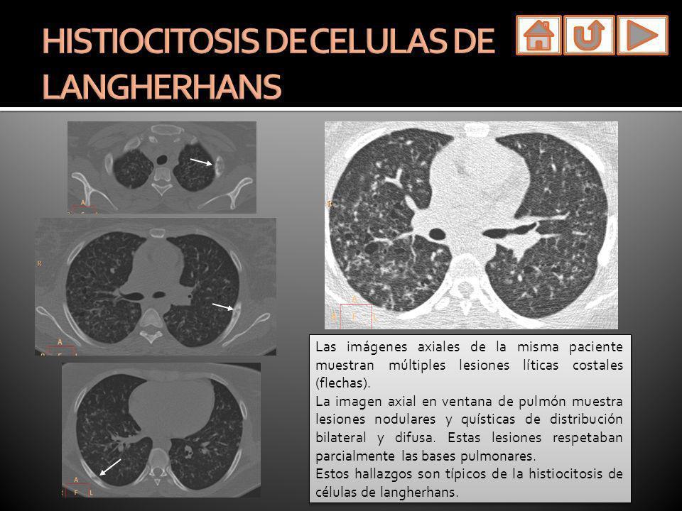 Las imágenes axiales de la misma paciente muestran múltiples lesiones líticas costales (flechas). La imagen axial en ventana de pulmón muestra lesione