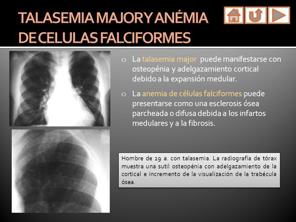o La talasemia major puede manifestarse con osteopénia y adelgazamiento cortical debido a la expansión medular. o La anemia de células falciformes pue