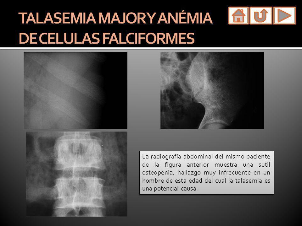 La radiografía abdominal del mismo paciente de la figura anterior muestra una sutil osteopénia, hallazgo muy infrecuente en un hombre de esta edad del