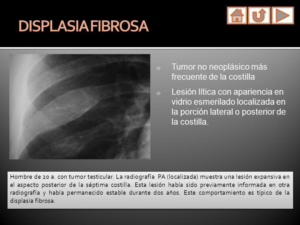 o Tumor no neoplásico más frecuente de la costilla o Lesión lítica con apariencia en vidrio esmerilado localizada en la porción lateral o posterior de