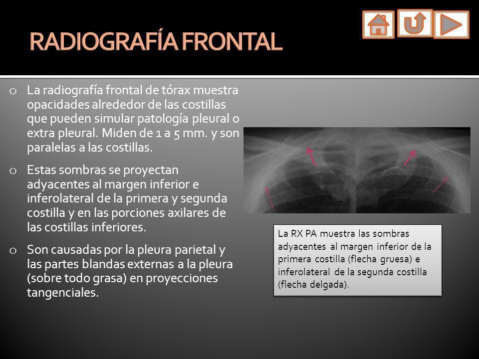 o La radiografía frontal de tórax muestra opacidades alrededor de las costillas que pueden simular patología pleural o extra pleural. Miden de 1 a 5 m