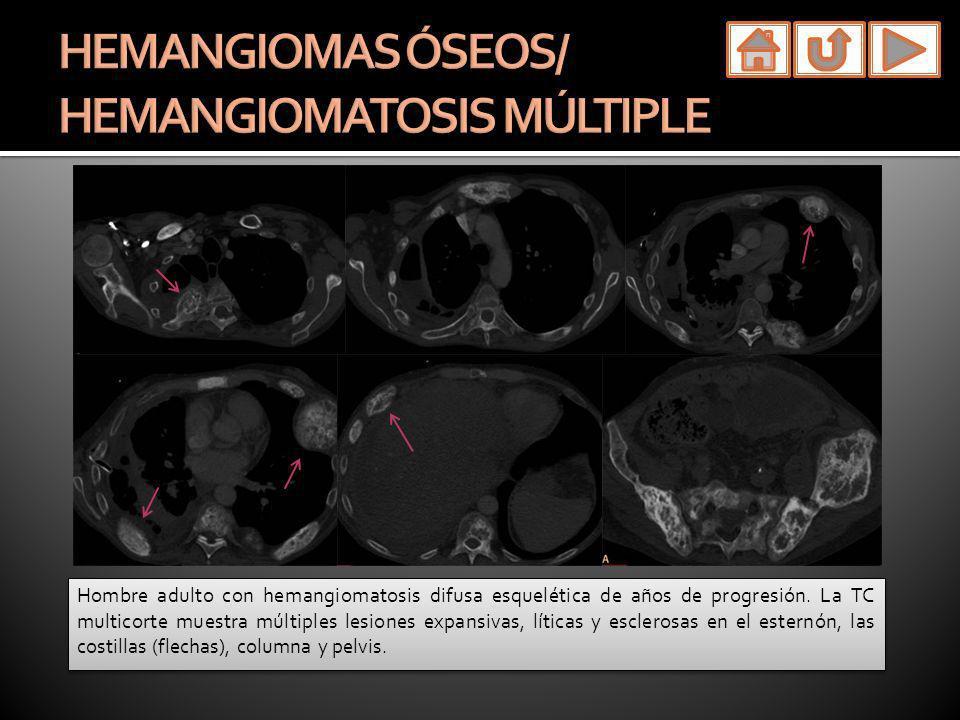 Hombre adulto con hemangiomatosis difusa esquelética de años de progresión. La TC multicorte muestra múltiples lesiones expansivas, líticas y escleros