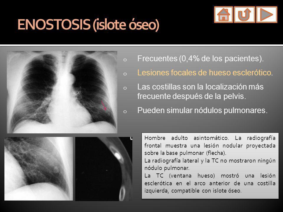 o Frecuentes (0,4% de los pacientes). o Lesiones focales de hueso esclerótico. o Las costillas son la localización más frecuente después de la pelvis.