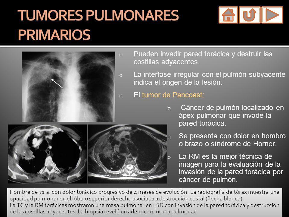 o Pueden invadir pared torácica y destruir las costillas adyacentes. o La interfase irregular con el pulmón subyacente indica el origen de la lesión.