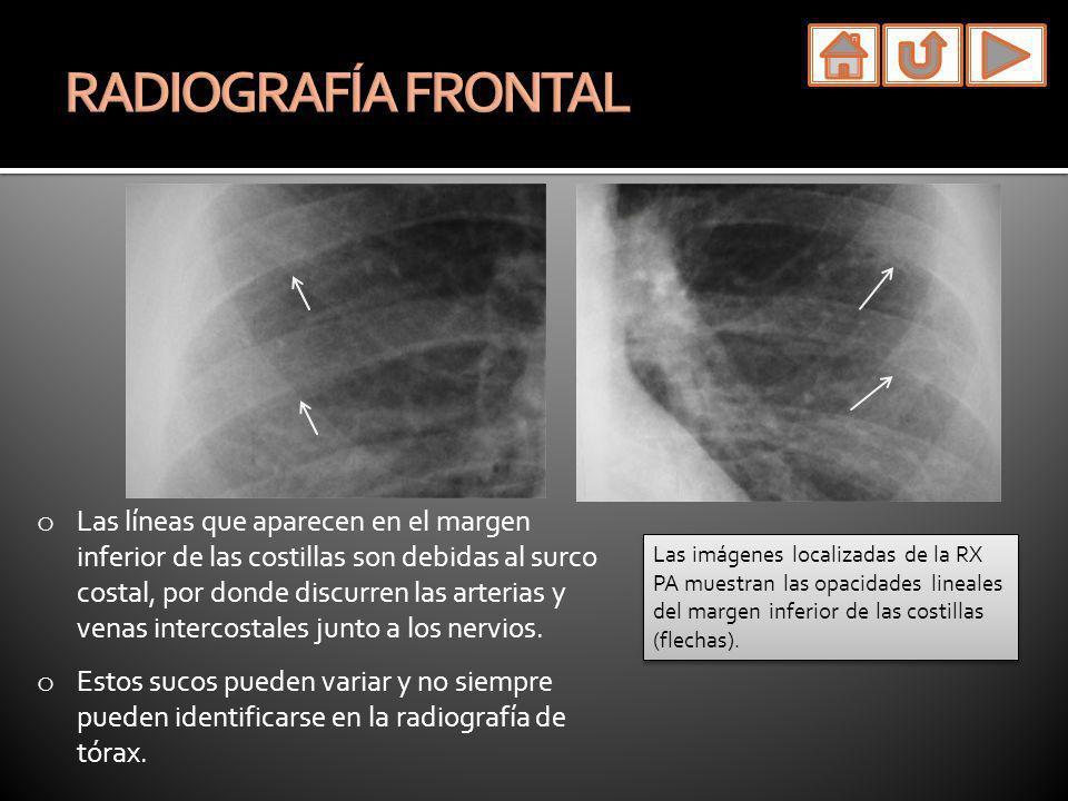 o Depresión del esternón.o Mejor visualizada en la radiografía lateral.