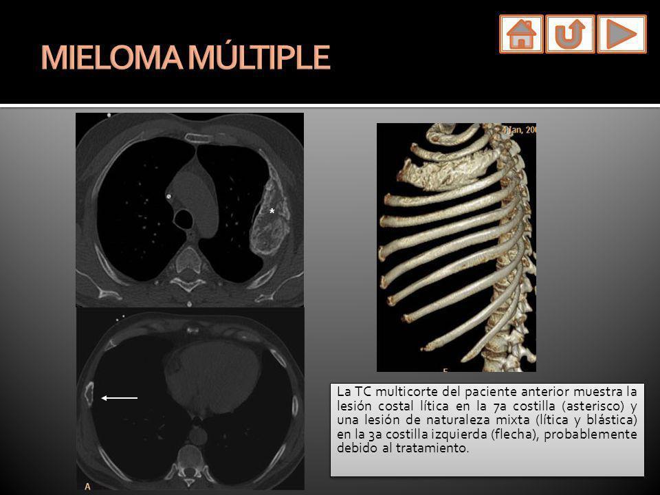 MIELOMA MÚLTIPLE La TC multicorte del paciente anterior muestra la lesión costal lítica en la 7a costilla (asterisco) y una lesión de naturaleza mixta