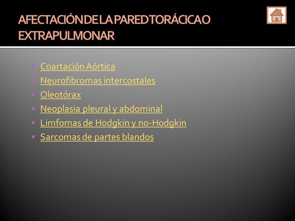 Coartación Aórtica Neurofibromas intercostales Oleotórax Neoplasia pleural y abdominal Limfomas de Hodgkin y no-Hodgkin Sarcomas de partes blandos