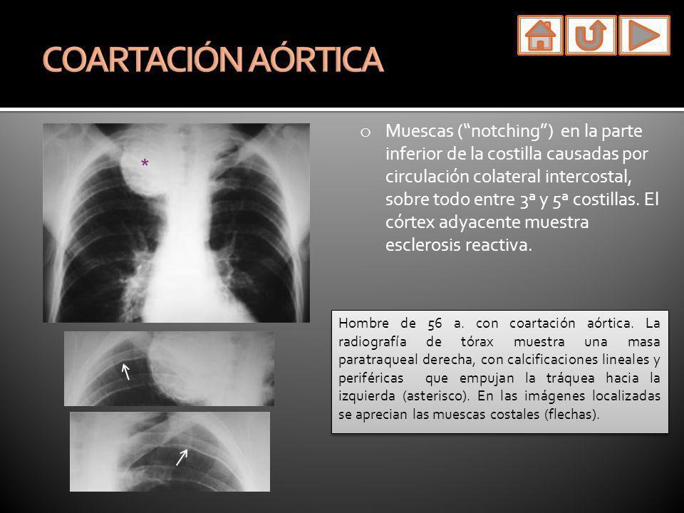 o Muescas (notching) en la parte inferior de la costilla causadas por circulación colateral intercostal, sobre todo entre 3ª y 5ª costillas. El córtex