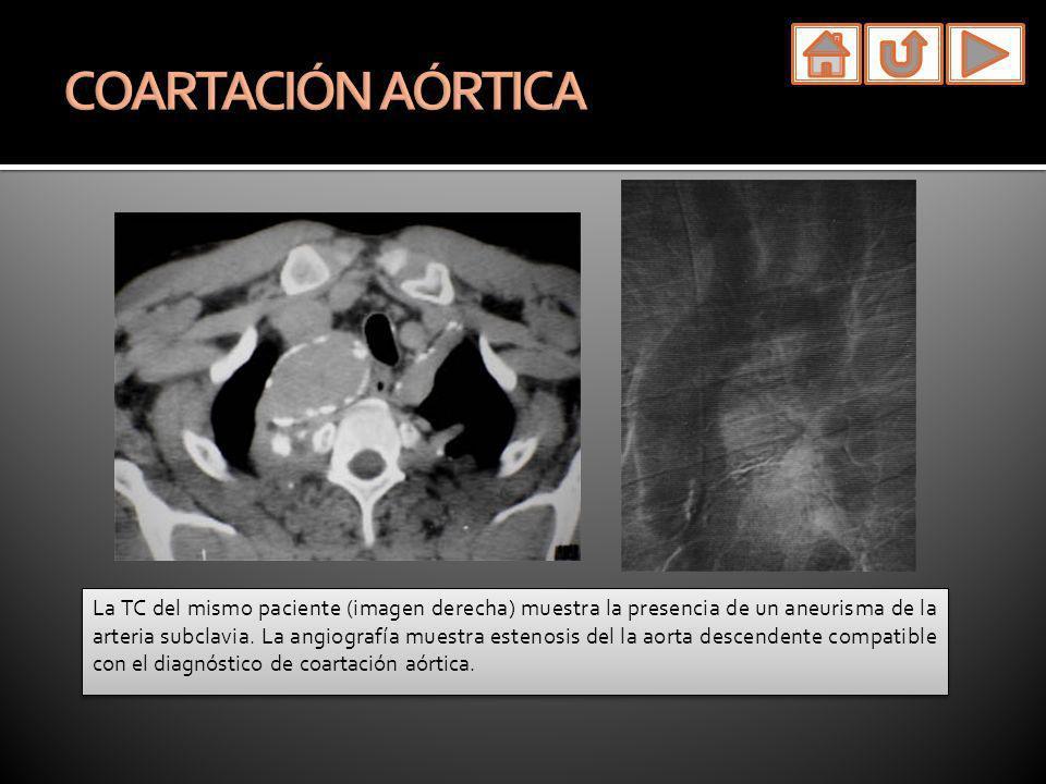 La TC del mismo paciente (imagen derecha) muestra la presencia de un aneurisma de la arteria subclavia. La angiografía muestra estenosis del la aorta