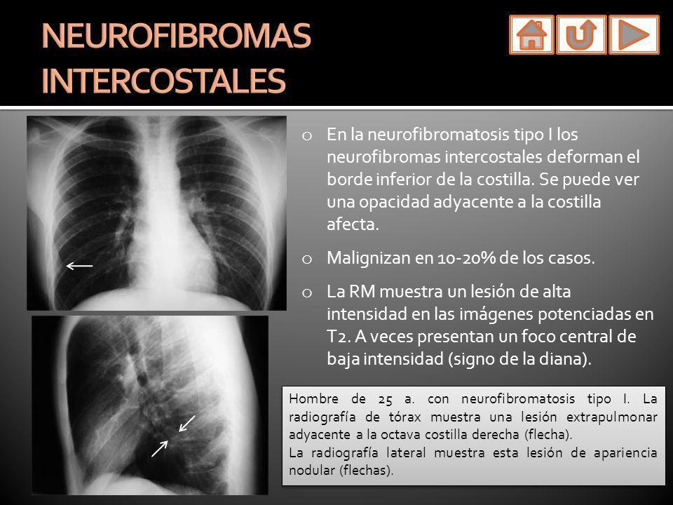 o En la neurofibromatosis tipo I los neurofibromas intercostales deforman el borde inferior de la costilla. Se puede ver una opacidad adyacente a la c