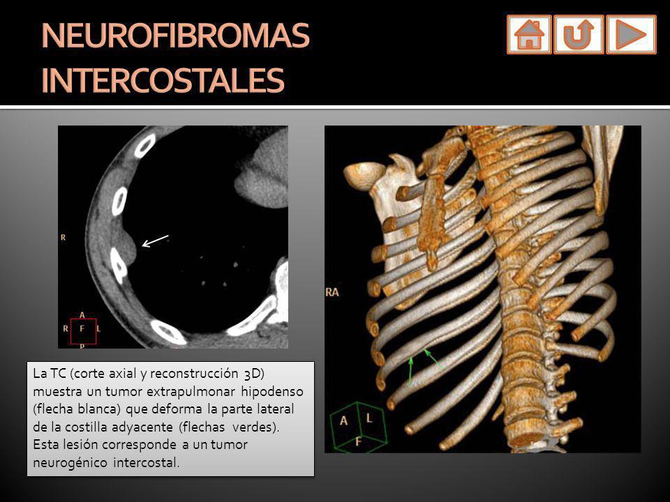 La TC (corte axial y reconstrucción 3D) muestra un tumor extrapulmonar hipodenso (flecha blanca) que deforma la parte lateral de la costilla adyacente
