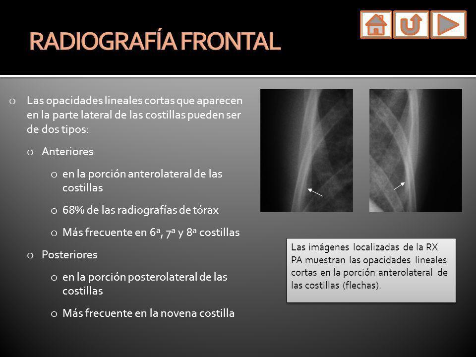 o La parte posterior de las costillas se visualiza fácilmente en las radiografías de tórax laterales.