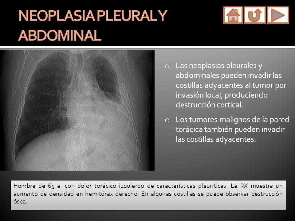 o Las neoplasias pleurales y abdominales pueden invadir las costillas adyacentes al tumor por invasión local, produciendo destrucción cortical. o Los