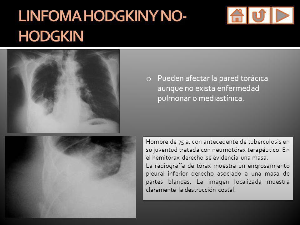 o Pueden afectar la pared torácica aunque no exista enfermedad pulmonar o mediastínica. Hombre de 75 a. con antecedente de tuberculosis en su juventud