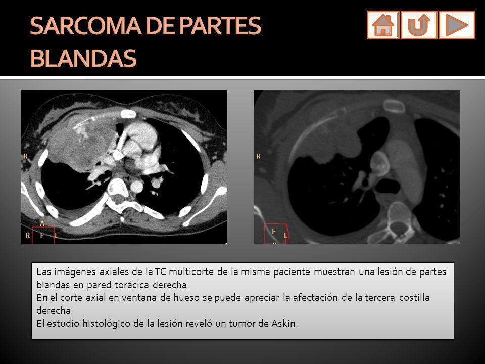 Las imágenes axiales de la TC multicorte de la misma paciente muestran una lesión de partes blandas en pared torácica derecha. En el corte axial en ve
