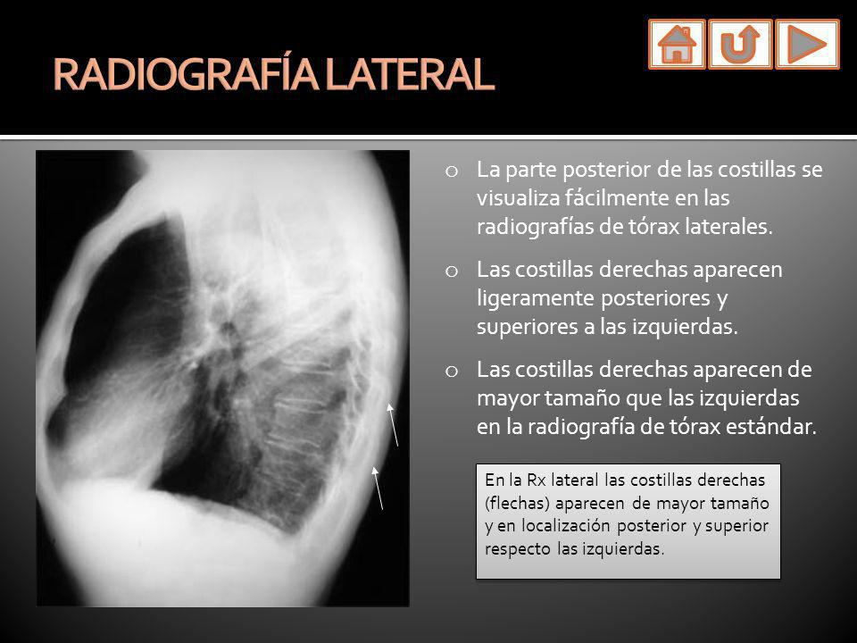 o La parte posterior de las costillas se visualiza fácilmente en las radiografías de tórax laterales. o Las costillas derechas aparecen ligeramente po