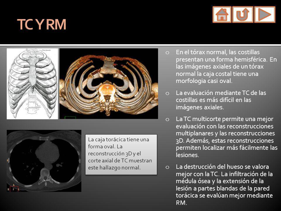 o En el tórax normal, las costillas presentan una forma hemisférica. En las imágenes axiales de un tórax normal la caja costal tiene una morfologia ca