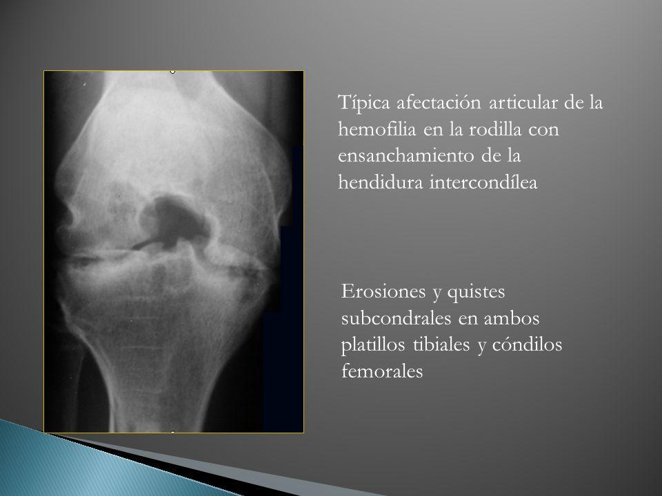 Típica afectación articular de la hemofilia en la rodilla con ensanchamiento de la hendidura intercondílea Erosiones y quistes subcondrales en ambos p