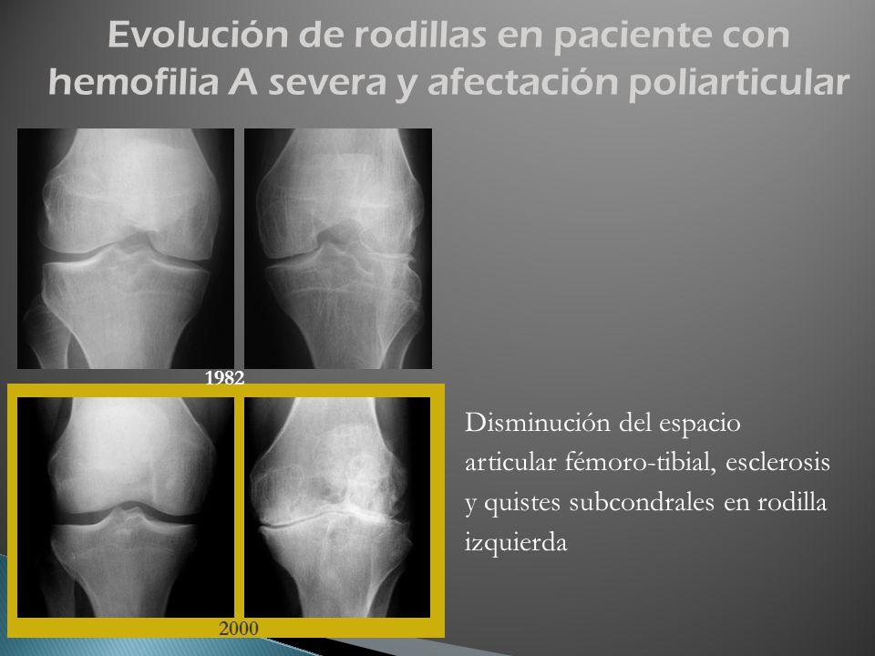 Disminución del espacio articular fémoro-tibial, esclerosis y quistes subcondrales en rodilla izquierda 1982 2000 Evolución de rodillas en paciente co