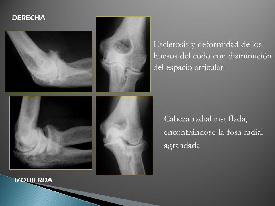 Esclerosis y deformidad de los huesos del codo con disminución del espacio articular Cabeza radial insuflada, encontrándose la fosa radial agrandada D