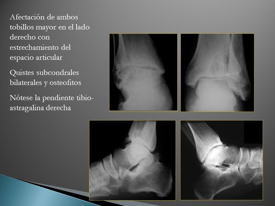 Afectación de ambos tobillos mayor en el lado derecho con estrechamiento del espacio articular Quistes subcondrales bilaterales y osteofitos Nótese la