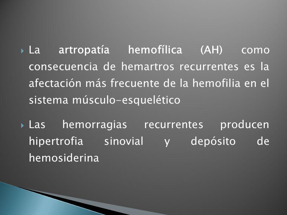 La artropatía hemofílica (AH) como consecuencia de hemartros recurrentes es la afectación más frecuente de la hemofilia en el sistema músculo-esquelét