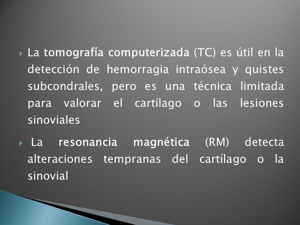 La tomografía computerizada (TC) es útil en la detección de hemorragia intraósea y quistes subcondrales, pero es una técnica limitada para valorar el