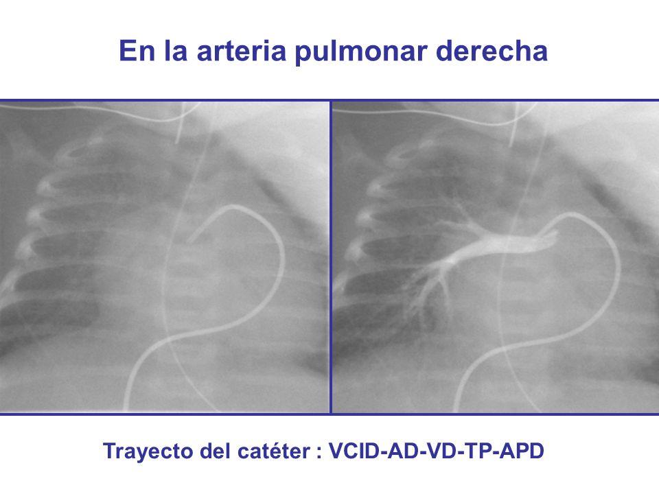 En la arteria pulmonar derecha Trayecto del catéter : VCID-AD-VD-TP-APD