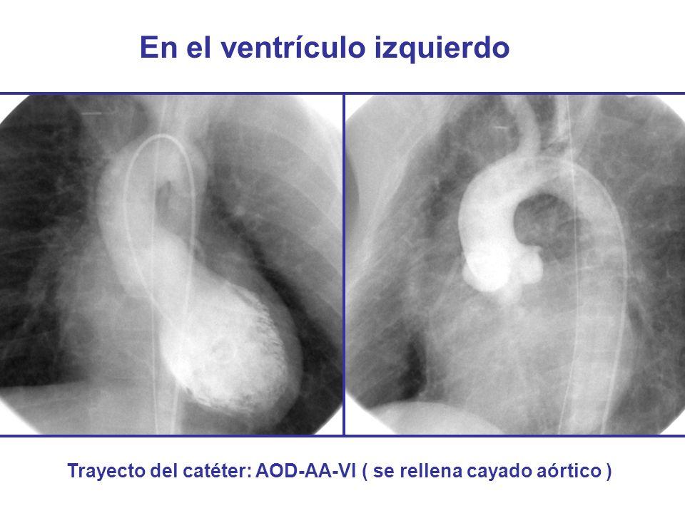 En el ventrículo izquierdo Trayecto del catéter: AOD-AA-VI ( se rellena cayado aórtico )