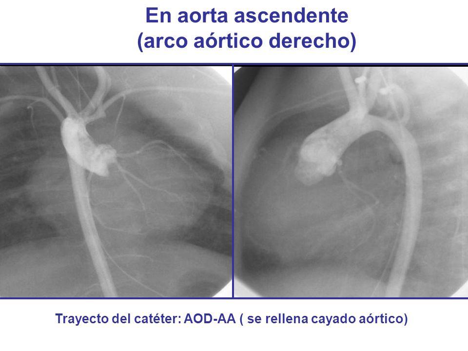 En aorta ascendente (arco aórtico derecho) Trayecto del catéter: AOD-AA ( se rellena cayado aórtico)