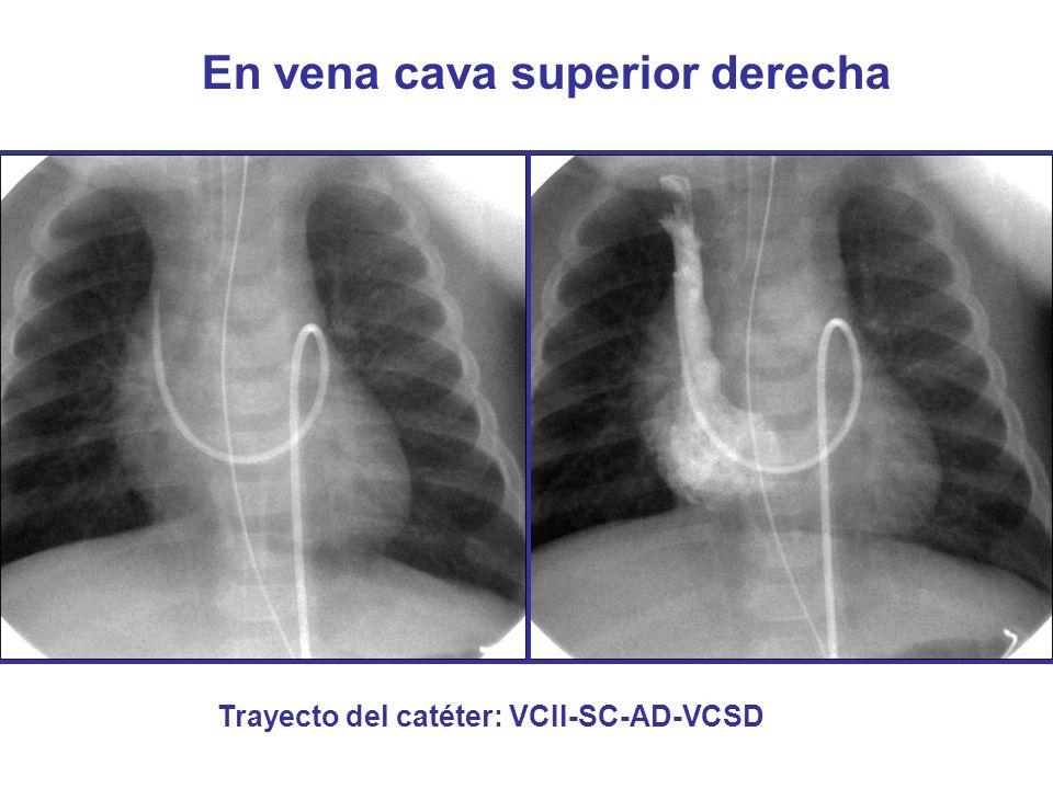 En vena cava superior derecha Trayecto del catéter: VCII-SC-AD-VCSD