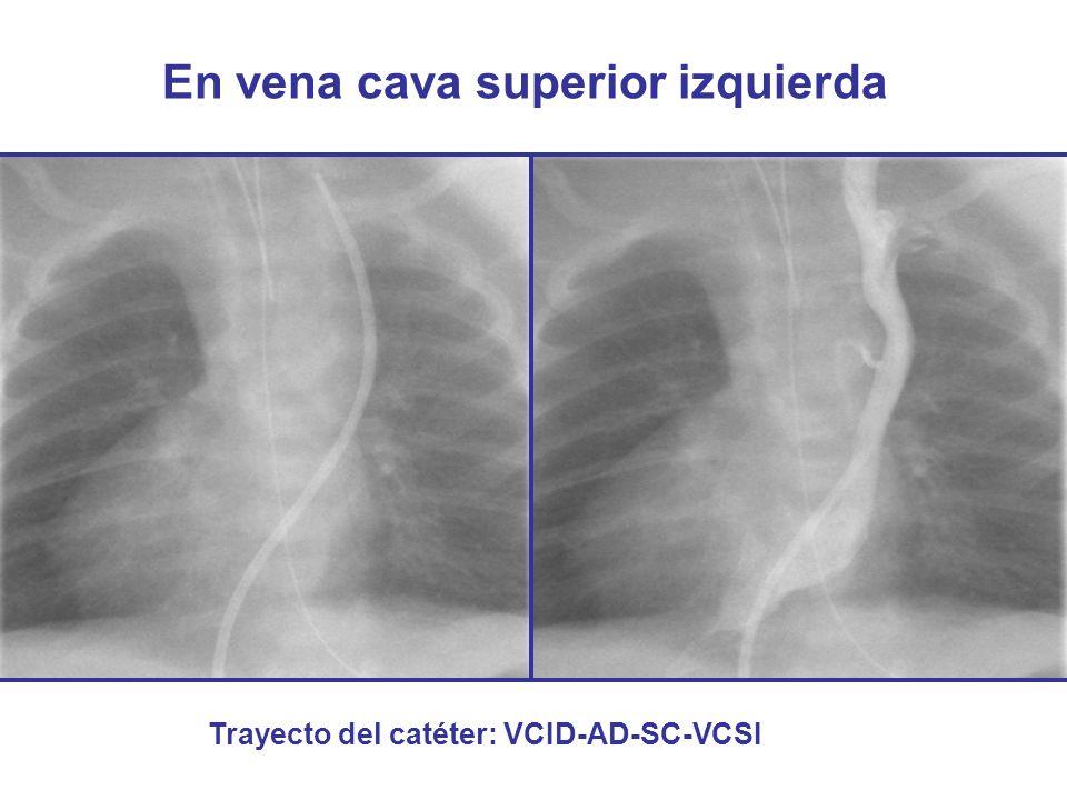 En vena cava superior izquierda Trayecto del catéter: VCID-AD-SC-VCSI