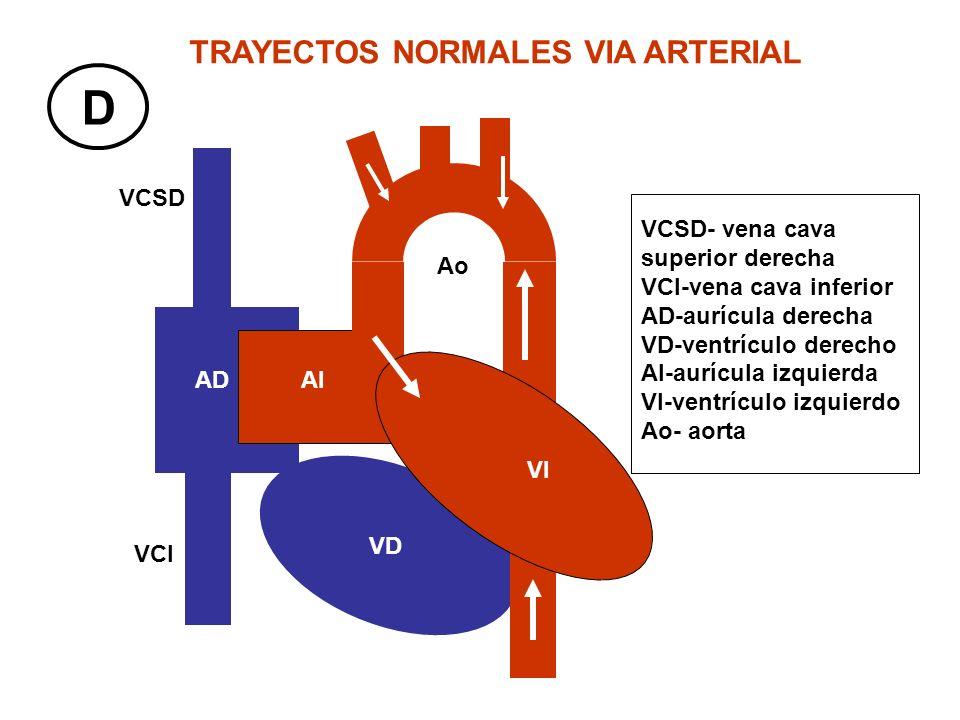 VCSD VCI AD VD TRAYECTOS NORMALES VIA ARTERIAL D AI VI Ao VCSD- vena cava superior derecha VCI-vena cava inferior AD-aurícula derecha VD-ventrículo de