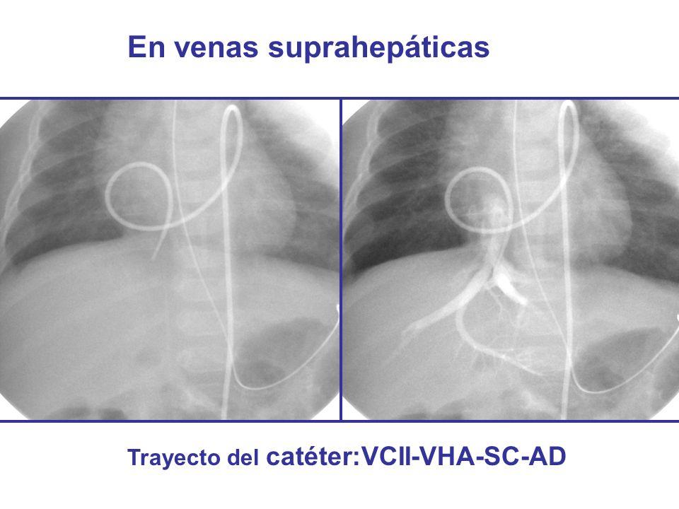 En venas suprahepáticas Trayecto del catéter:VCII-VHA-SC-AD