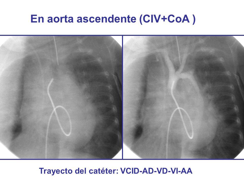 En aorta ascendente (CIV+CoA ) Trayecto del catéter: VCID-AD-VD-VI-AA