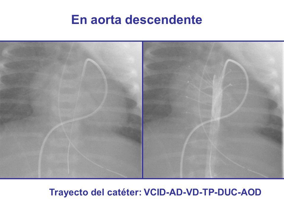 En aorta descendente Trayecto del catéter: VCID-AD-VD-TP-DUC-AOD