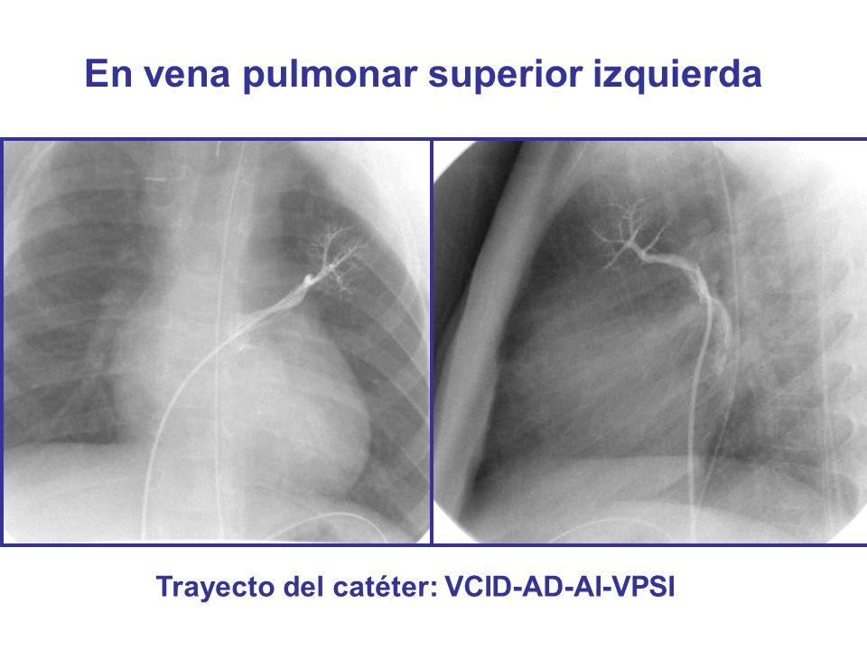 En vena pulmonar superior izquierda Trayecto del catéter: VCID-AD-AI-VPSI
