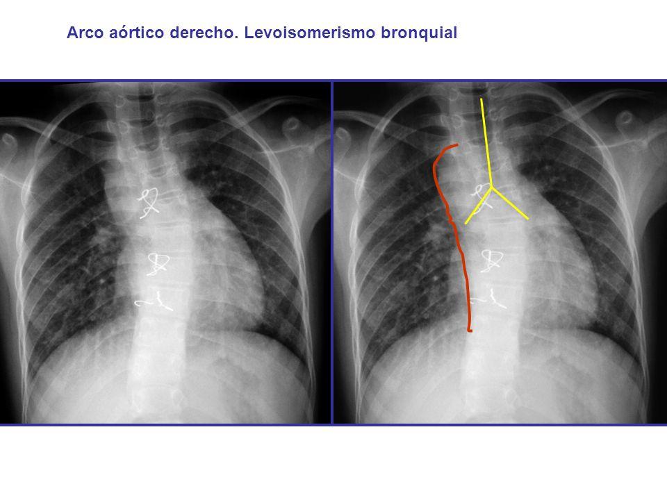 Arco aórtico derecho. Levoisomerismo bronquial