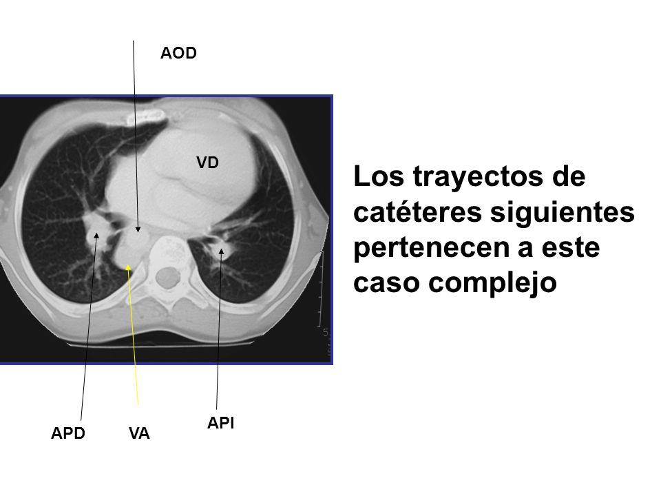 APD API VA AOD VD Los trayectos de catéteres siguientes pertenecen a este caso complejo