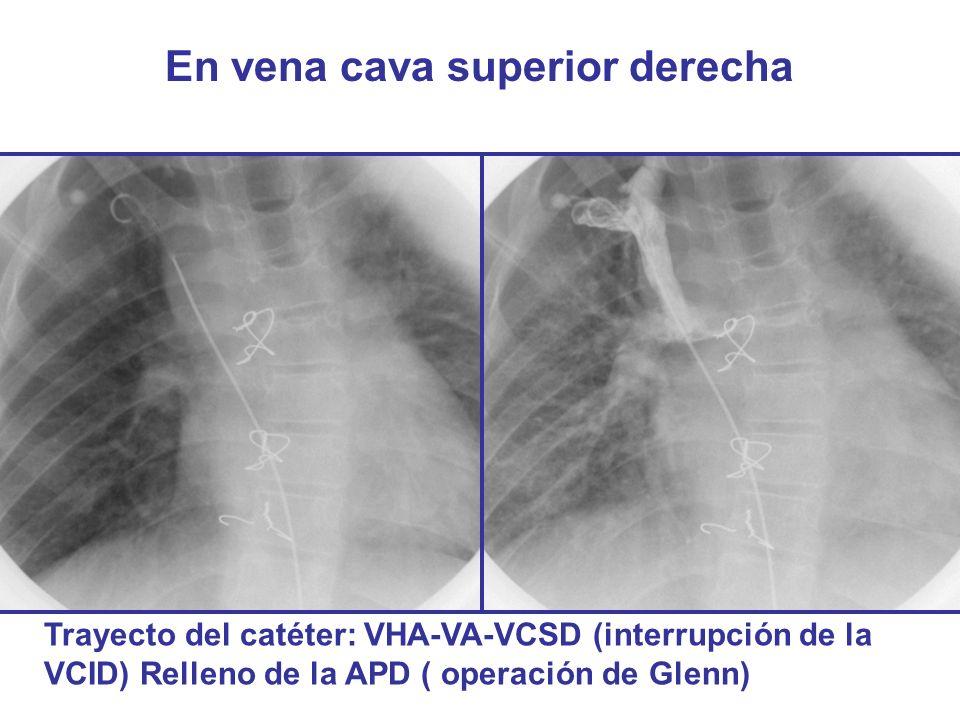 En vena cava superior derecha Trayecto del catéter: VHA-VA-VCSD (interrupción de la VCID) Relleno de la APD ( operación de Glenn)