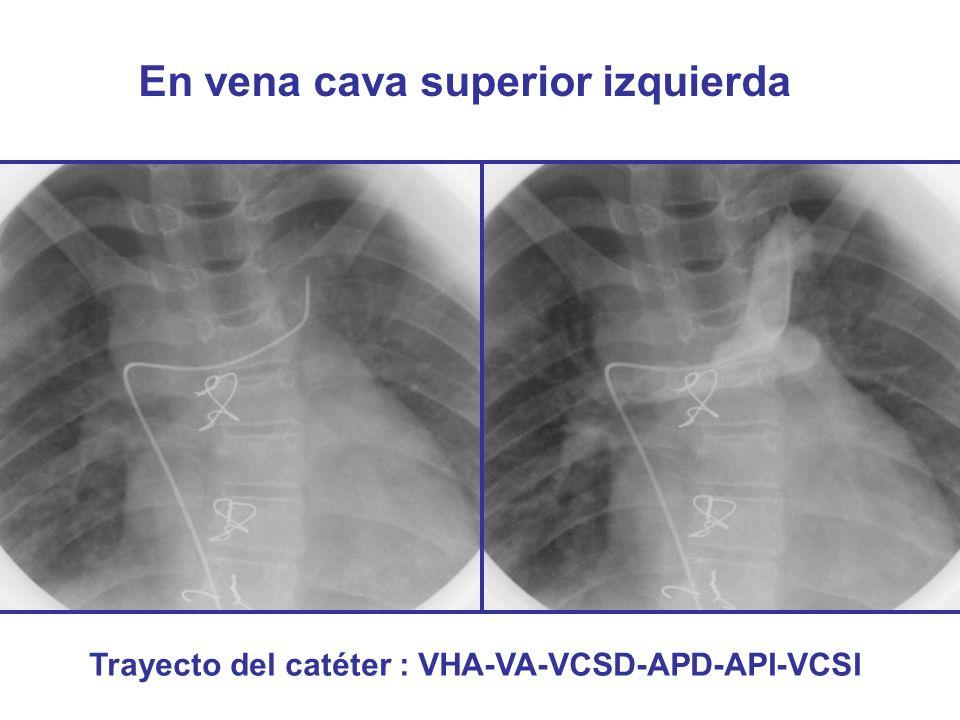 En vena cava superior izquierda Trayecto del catéter : VHA-VA-VCSD-APD-API-VCSI